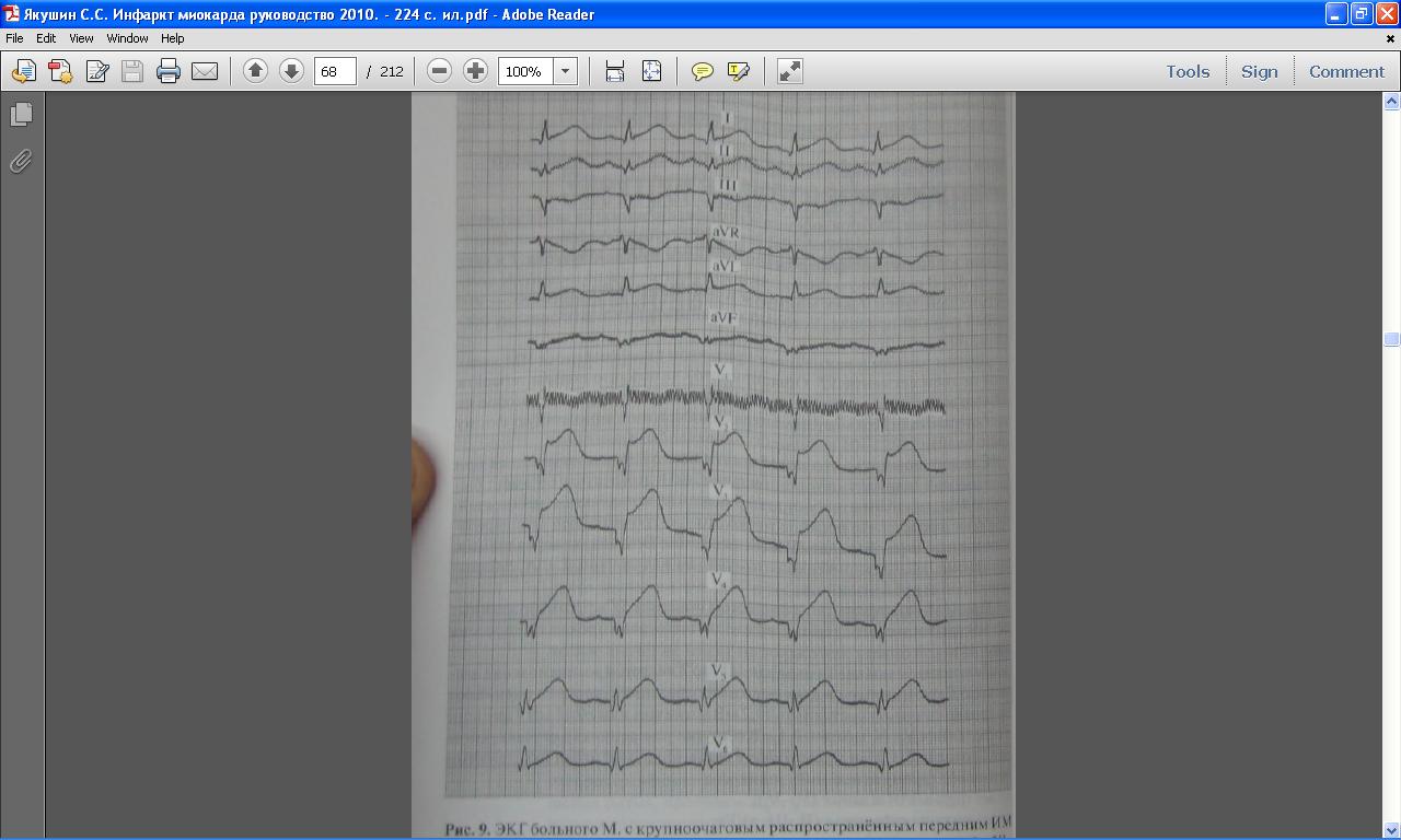 Актуальность инфаркта миокарда