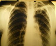 3 группа туберкулеза