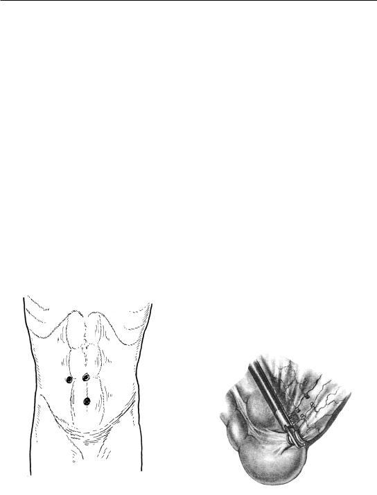 Аппендэктомия Лапароскопическая Послеоперационный Период Диета. Что можно есть после удаления аппендицита