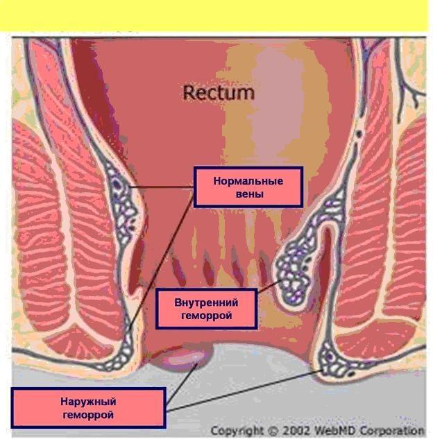 Геморрой Во Время Беременности Симптомы И Лечение