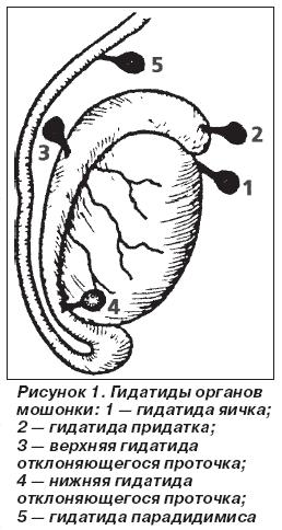 Некроз гидатиды левого яичка