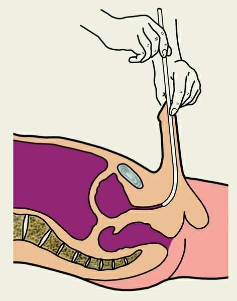 Хроническая почечная недостаточность - клиника (симптомы), диагностика, лечения, профилактик и прогноз