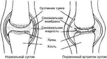 Функциональные суставные мышечные заболевания операции на связках коленного сустава томск