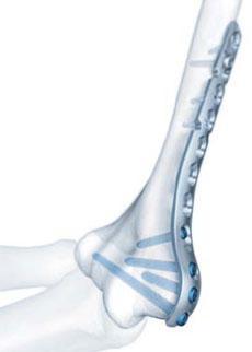 Реферат Переломы плечевой кости довольно широко распространены и составляют от 5 до 20 % от всего числа переломов костей скелета Переломы плечевой кости