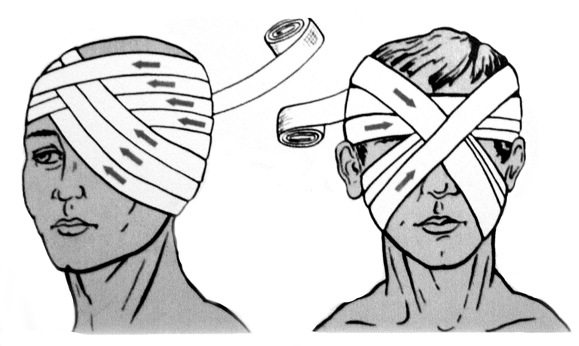 Повязки хирургия с картинками