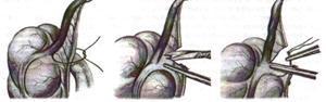 Доступы при операциях на поджелудочной железе thumbnail