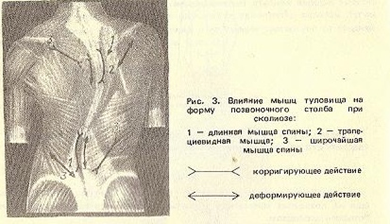 Физиотерапия в лечении хронического бронхита