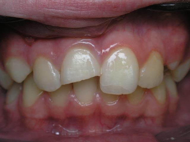 Электродиагностика и электротерапия в стоматологии
