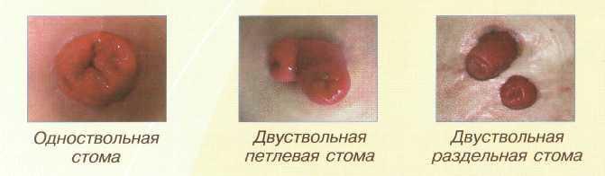 Стомы виды стом реферат 4213