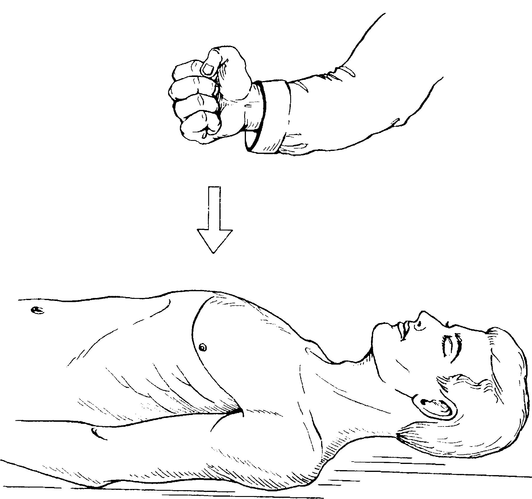 Лекарственная терапия при остановке сердца