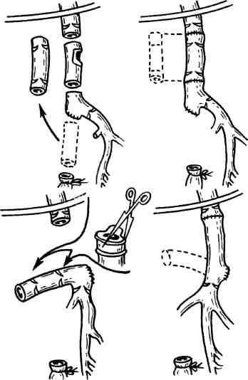 Тромбоз почечной вены
