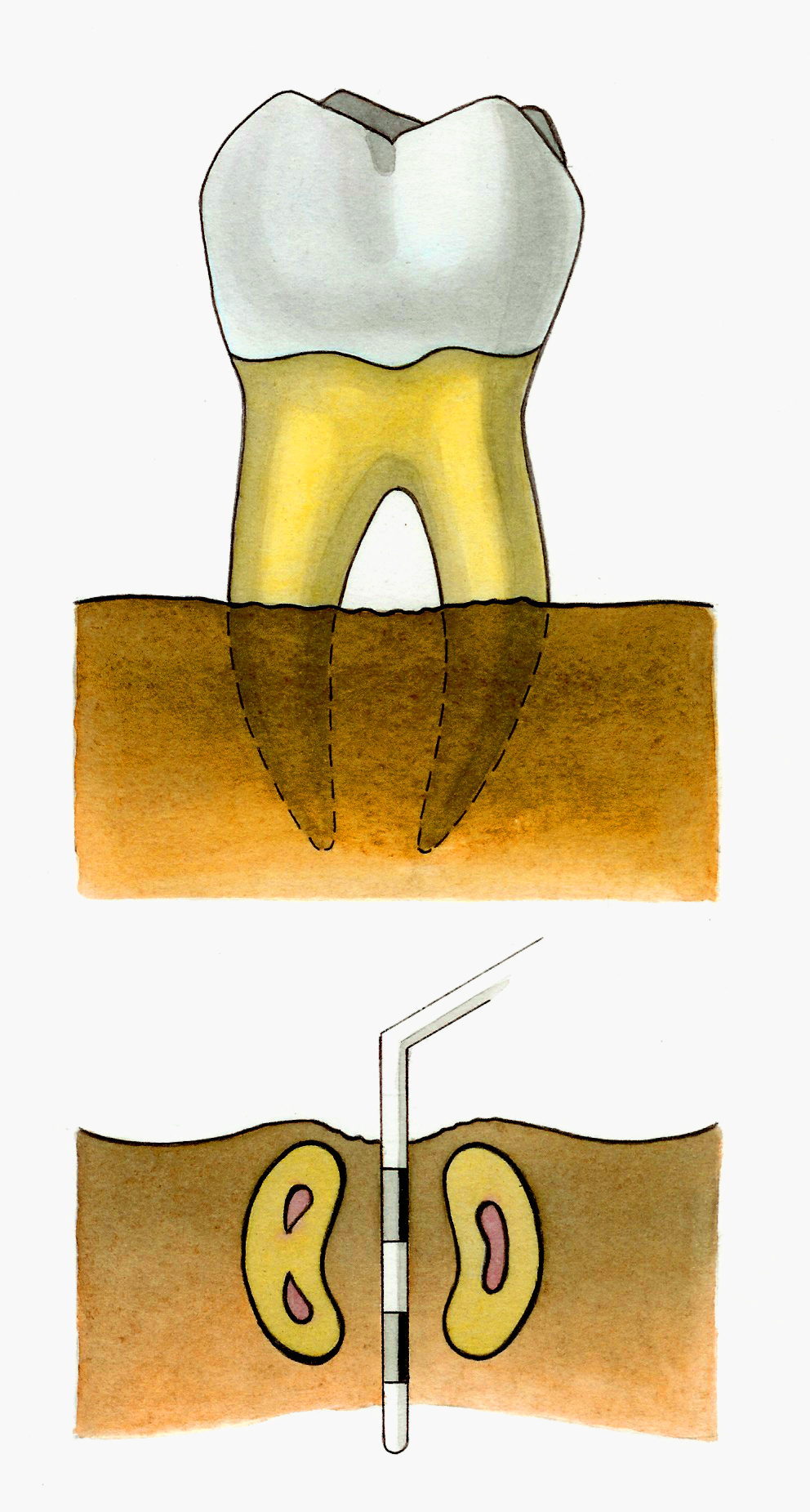 Пародонтит по патологической анатомии