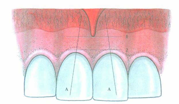 STOMWEB - Статья - Лечение агрессивных и атипичных форм пародонтита