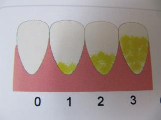 Периодонтит молочных зубов у ребенка классификация заболевания лечение хронической и острой формы