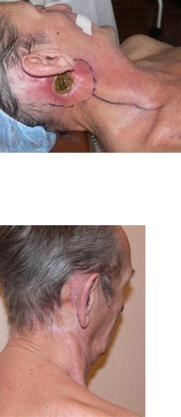 пачес опухоли головы и шеи pdf