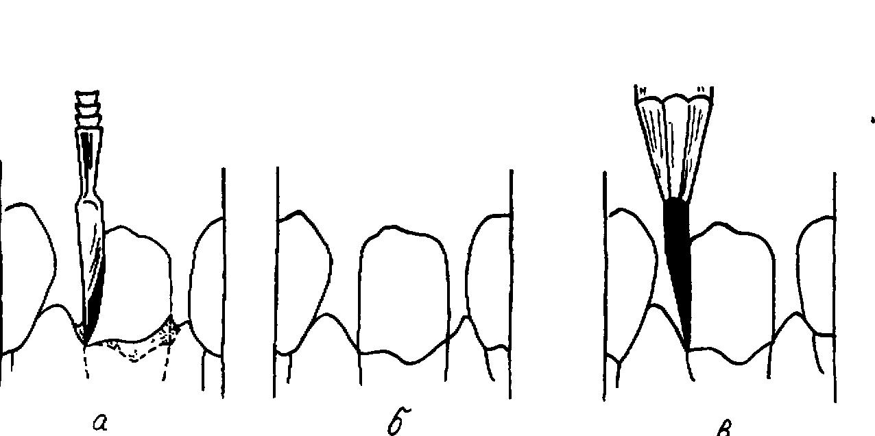 Схема сошлифовывания гипса на модели