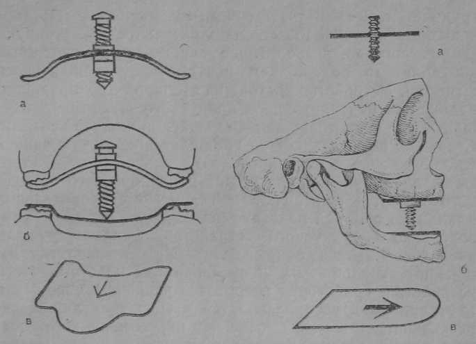 Параллелометрия в ортопедической стоматологии