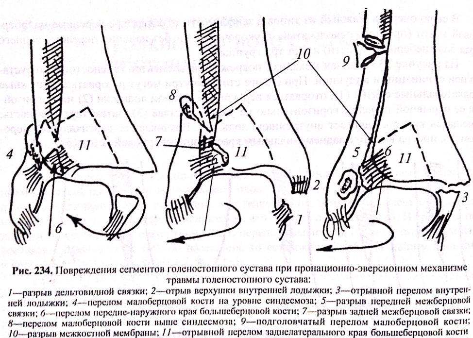 Классификация травм голеностопного сустава хруст в коленном суставе у грудничка