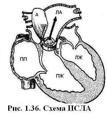 Дифференциальная диагностика дефекта межпредсердной перегородки