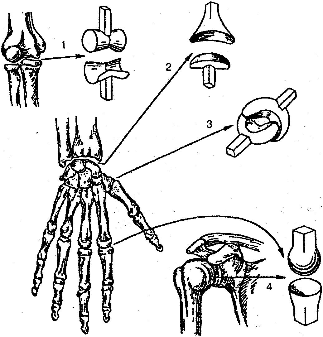 Изображение - Какие кости соединены суставами img-G41w9f