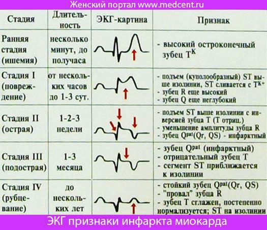 Острая сердечно сосудистая недостаточность острый инфаркт миокарда