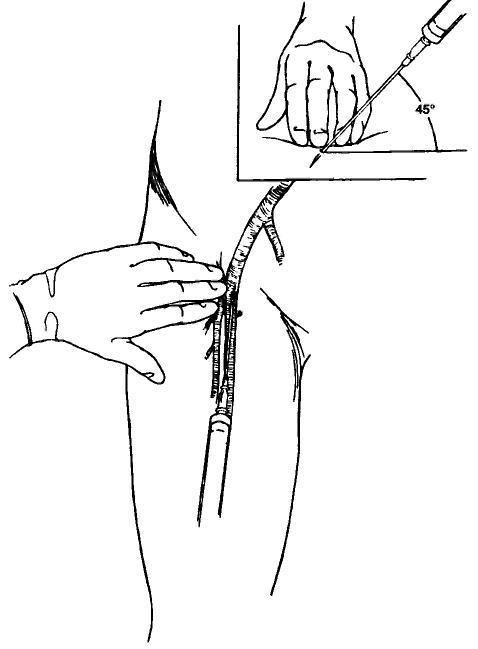 Измерение давления инвазивным методом