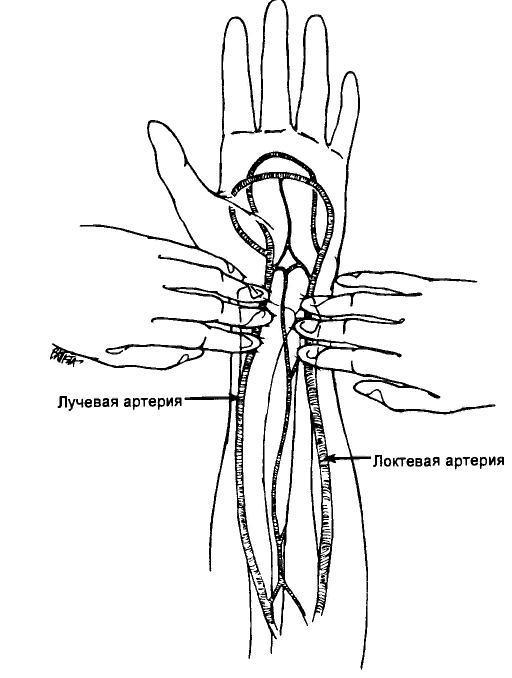 Изображение - Инвазивное измерение артериального давления img-mZdiOP