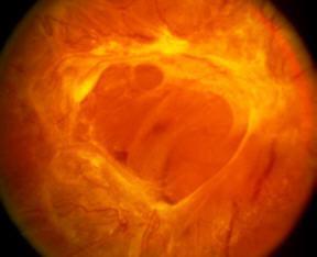 Истории болезни по офтальмологии отслойка