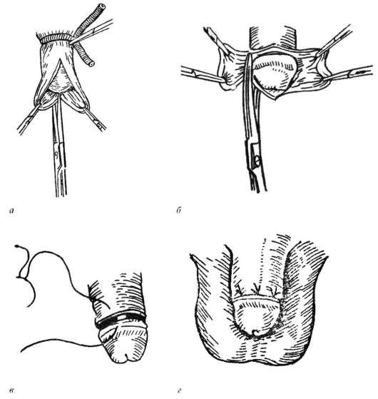 Методы увеличения пениса