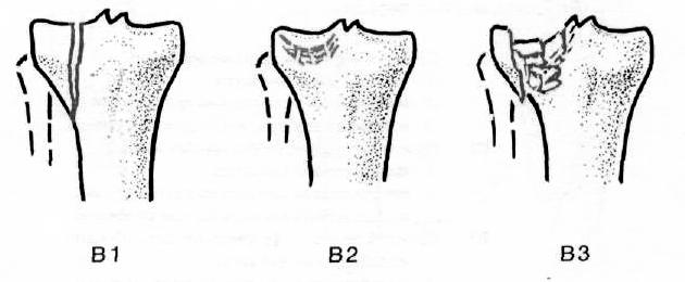 Восстановление подвижности коленного сустава после перелома мыщелка большой берцовой кост у собаки опухла лапа в суставе