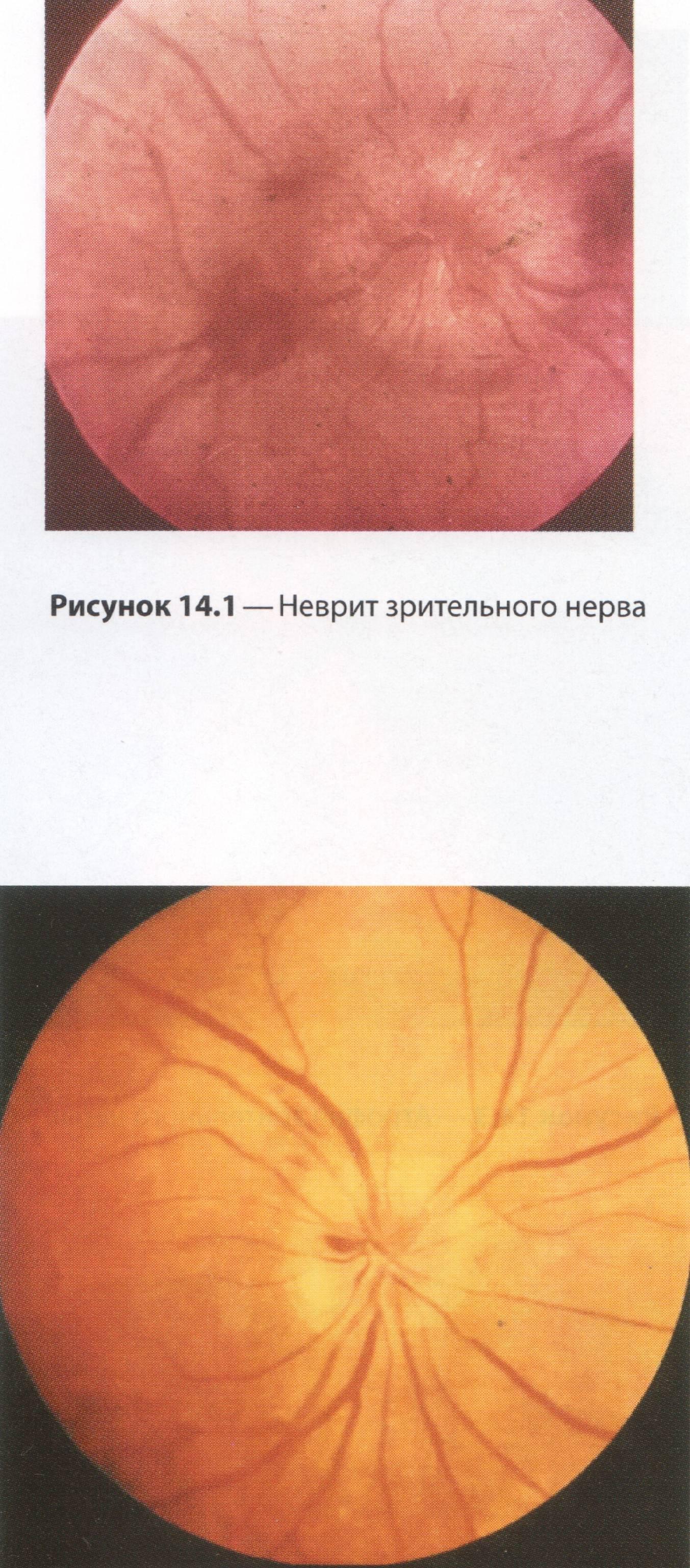 Неврит зрительного нерва: симптомы, лечение. Ретробульбарный неврит зрительного нерва 41