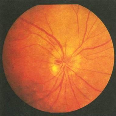 Ишемическая нейропатия зрительного нерва реферат 5378