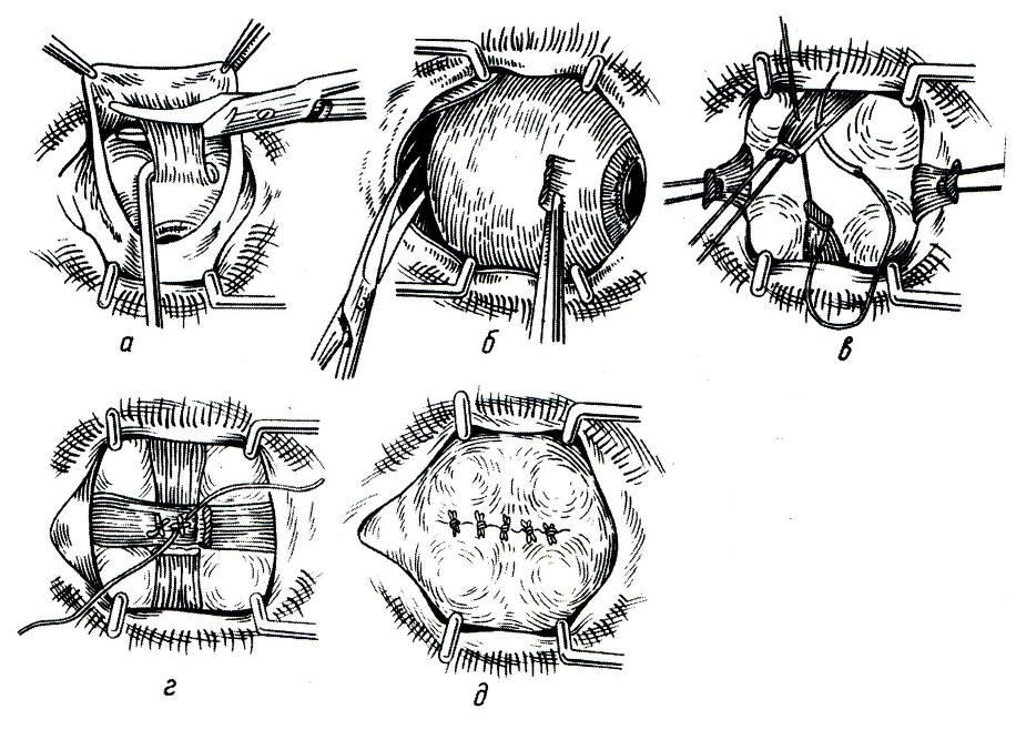 Рак орбиты глаза лечение