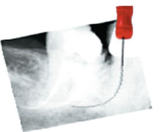 Методики Использования Эндодонтического Инструментария • OHI-S