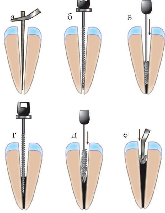 Пломбирование корневого канала зуба пастой