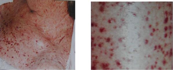 лейкемиды кожи фото надеть