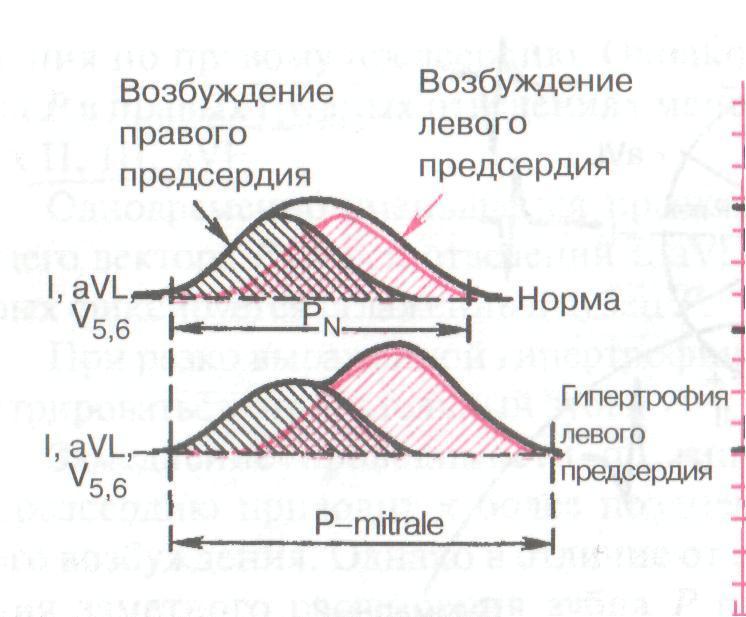 Электрическая ось сердца таблица