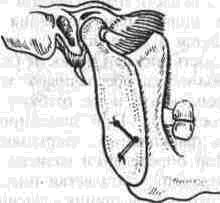 Артропластика височно-нижнечеюстного сустава по йовчеву дисплазия тазобедренных суставов у детей фото нормы