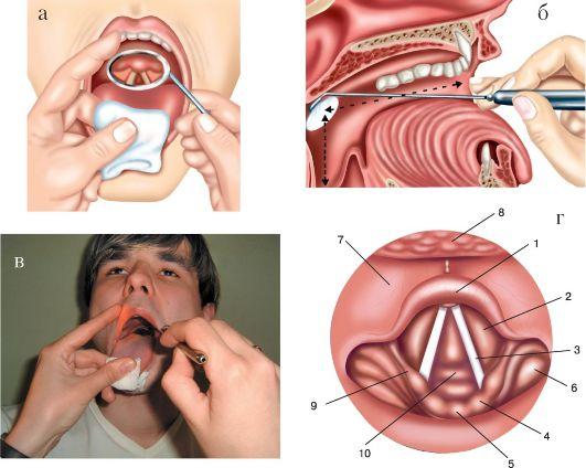 Уход за больными с трахеостомой