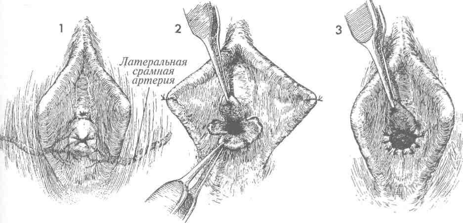 samie-bolshie-predmeti-vlagalishe