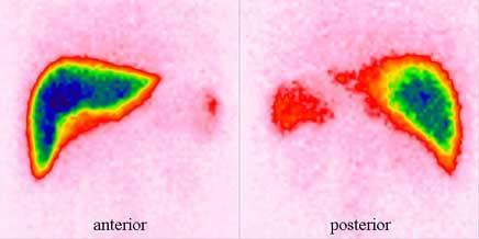 Вентиляционно перфузионная сцинтиграфия легких
