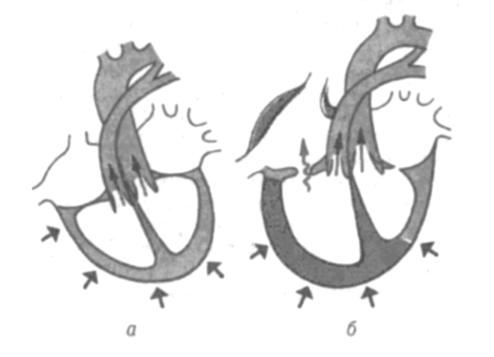 Створки трикуспидального клапана названия