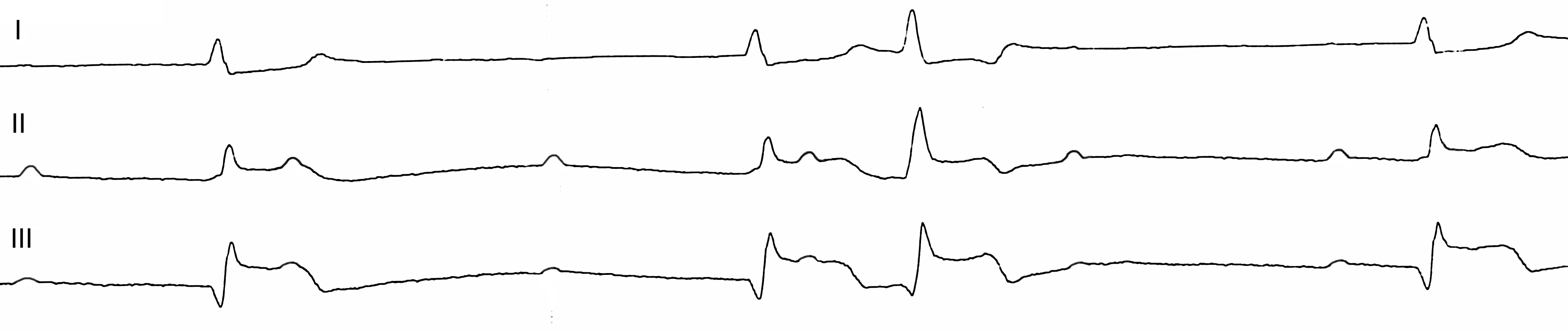 примеры экг с инфарктом миокарда