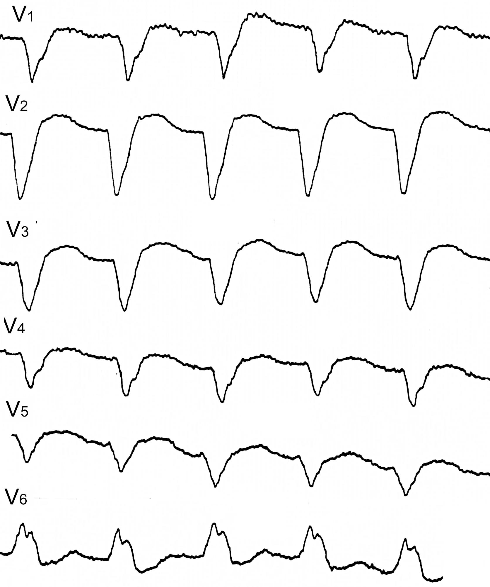 Прогноз острого периода инфаркта миокарда и его значение для терапии, Диагностика инфаркта миокарда ЭКГ