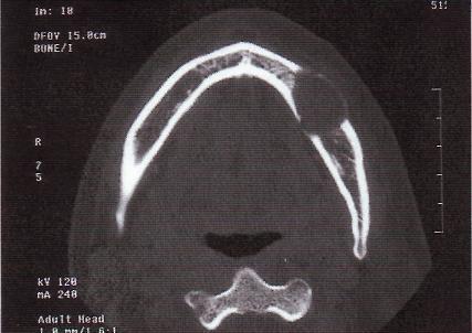 Доброкачественные опухоли мягких тканей