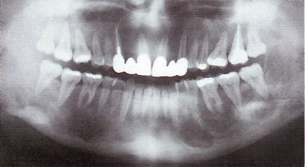 Дифференциальный диагноз фиброзной остеодисплазии