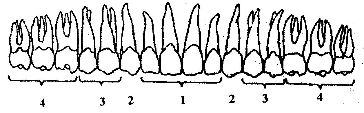 Соотношение аномально расположенных зачатков зубов относительно анатомических структур