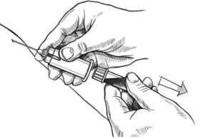 Алгоритм действий при заборе крови на анализ thumbnail
