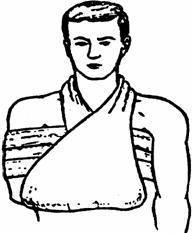 Правила и способы оказания первой помощи при переломах костей и вывихах