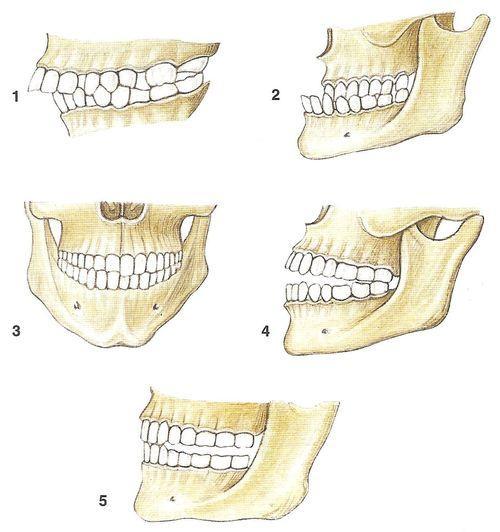 Нумерация зубов в стоматологии — рисунок, схема, фото, как нумеруются зубы
